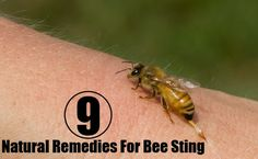 9 Natural Remedies For Bee Sting