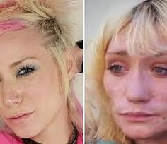 Jael was introduced to methamphetamine and today at the age of only 28, she has rotten teeth, a body covered in meth sores, and she is homeless. This is what's left after a six year battle with drugs.