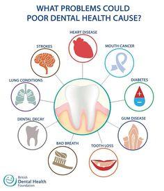 El no cepillar tu dentadura te puede ocasionar enfermedades a distancia. ¡cuidate! las visitas al dentista son dos veces al año.