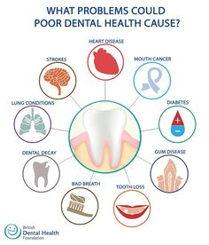 What problems could poor dental health cause? Heart Disease Mouth cancer Diabetes Gum Disease Tooth Loss Bad Breath Dental Decay Lung Conditions Strokes British Dental Health Foundation @dentalhealthorg