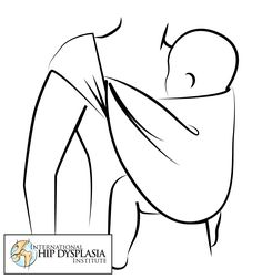 Baby carriers should support the thigh and allow the legs to spread to prevent hip dysplasia.