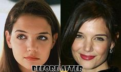 Katie Holmes Before And After Nose Job Katie Holmes, Tummy Tuck Before After, Plastic Surgery Pictures, Celebrity Plastic Surgery, Celebrities Before And After, Tummy Tucks, Rhinoplasty, New Face