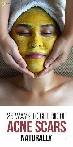 Get Rid of Scars Naturally: Acne is itself such a trauma for our skin, it leaves behind its trace, some ugly marks on our face, Here is how to get rid of acne scars naturally. Black Spots On Face, Brown Spots On Hands, Dark Spots, Warts On Hands, Warts On Face, Get Rid Of Warts, Remove Warts, Remove Acne, What Causes Warts