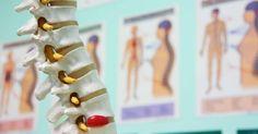 Rückenschmerzen können viele Ursachen haben. Wenn du auch unter unerklärlichen Schmerzen leidest, solltest du diese Ursachen prüfen und gegensteuern.