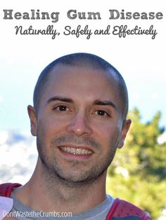 Our Journey to Healing Gum Disease Naturally | http://dontwastethecrumbs.com/2014/06/healing-gum-disease-naturally/