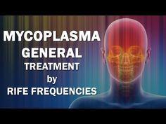 支原體 - Mycoplasma General - RIFE Frequencies Treatment - Energy & Quantum Medicine with Bioresonance - https://www.youtube.com/watch?v=Uk4PpQxei90