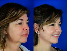 Before and After - Tammy, 52 Procedures: Facelift / Reflection Lift