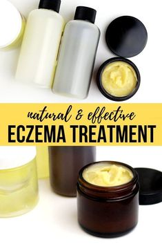 Natural eczema treatment. How to make a natural eczema relief balm recipe with essential oils for real eczema relief. Stop the itching and scratching. Soothe, calm and moisturize your eczema prone skin with this natural eczema remedy for sensitive skin. Plus 8 more homemade eczema treatments to try from soap to eczema wet wrap therapy. Homemade herbal balms and salves recipes for eczema, dry skin and other common skin conditions. Natural home remedy for eczema relief.
