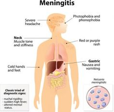 Meningitis is inflammation surrounding protective membranes of the spinal cord. Bacterial meningitis can be life-threatening, especially in aging adults. Bacterial Meningitis, Bacterial Infection, Signs Of Dehydration, Bone Diseases, High Fever, Bone Loss, Viral Infection, Body Tissues, Signs And Symptoms