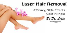 Laser facial hair removal costs