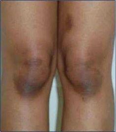 Joelhos, cotovelos e axilas são regiões muito sensíveis da pele e, por isso, têm maior probabilidade de ficarem escuros.O que acontece é que essas áreas são sempre submetidas a atritos, ao calor do local e à umidade.