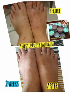 Recently lot mosquito due to hot weather suddenly attack bites my foot left me lot mosquito bites scar and itchy look so ugly. But I tested my foot with#ameryllisherbalbalmthe scar diminish and reduce within 2 weeks. Now look less visible. Interested to ordering?? Pm me now price only rm30 west east rm40 perpcs. Looking something natural and safe? Pm me Joey. Wechat joey2383/whatsapp 0123757185www.ameryllisnatureskincare.WordPress.com#scar#mosquitobites