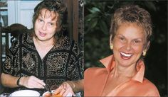 Brenda Cobb overcame the early stages of breast and cervical cancer without the use of drugs or surgery with raw food.  She got rid her allergies, acid reflux, indigestion, arthritis, obesity, liver spots, and gray hair.  Her eyesight even improved! http://www.livingfoodsinstitute.com/about_meetBrenda.php
