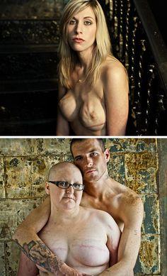 O que não se mostra do câncer de mama.