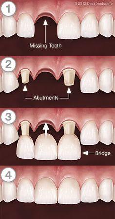 in Delhi India offers Fixed Partial Dentures in India India Dental Fixed Bridges Dental Bridges Delhi crown metal bridge stainless steel bridge metal free bridge Dental Hygiene School, Dental Life, Dental Procedures, Dental Assistant, Dental Health, Oral Health, Dental Hygienist, Dental Surgery, Dental Implants