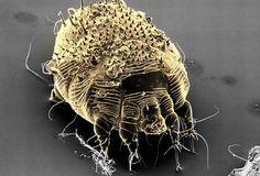 SEM Image of Scabies Mite
