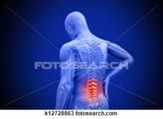 scientists-discover-some-chronic-back-pain-caused-by-bacterial-infections/