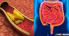 colesterolo candida