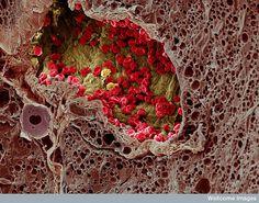 SEM of blood vessel in a melanoma by K. Hodivala-Dilke & M. Stone