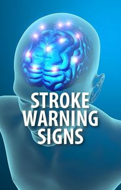 Dr Oz explained the FAST Test, which you can use to get an assessment of a person you think may be having a stroke. Meet a lifesaving granddaughter! Health Facts, Health And Nutrition, Health Tips, Health Fitness, The Doctors Tv Show, Body Hacks, Alternative Health, Kids Health, Sport