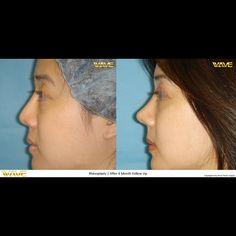 best-asian-facial-surgeon