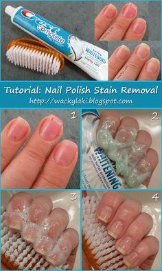 Nail polish stain removal- a great tip for reds s to get you.- Nail polish stain removal- a great tip for reds s to get your nails WHITE instea… Nail polish stain removal- a great tip for reds s to get your nails WHITE instead of tinged dark - Manicure Tips, Diy Nails, Cute Nails, Pretty Nails, Nail Care Tips, Shellac Nails, Jamberry Nails, Gorgeous Nails, Beauty Nails