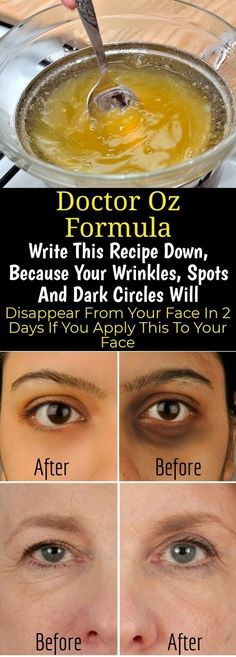 Home Articles Skin Care Write This Recipe Down, Because Your Wrinkles, Spots And Dark Circles Will Disappear From Your Face In 2 Days If You Apply This To Your Face Wrinkles are the specific signs of Beauty Care, Beauty Skin, Health And Beauty, Face Beauty, Healthy Beauty, Beauty Secrets, Beauty Hacks, Beauty Tips, Diy Beauty