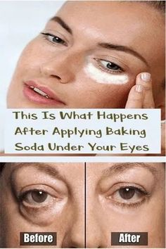 Brilliant Face skin care pointers number it is the smart method to provide right care for the facial skin. Morning and bedtime natural skin care pattern of facial skin care. Beauty Care, Beauty Skin, Beauty Hacks, Beauty Tips, Diy Beauty, Homemade Beauty, Beauty Products, Beauty Ideas, Face Beauty