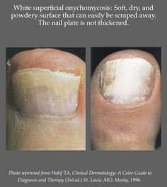 34 Best Nail Disorders Images On Pinterest