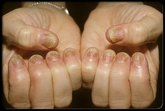 Nail Psoriasis- never knew it occurs on the nails! Up to half of people with skin plaques have psoriasis of the nails as well. This makes the nails look yellowish-red. The nails may also crumble, become pitted, or develop grooved lines. Nearly everyone with psoriasis of the nails also has psoriasis somewhere on the skin.