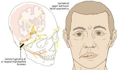 What is bells palsy? Bell's palsy is a weakness (paralysis) that affects the muscles of the face. It is due to a problem with the facial nerve. The weakness usually affects one side of the face. Rarely, both sides are affected.