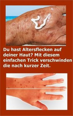 You have age spots on your skin? With this simple . Mit diesem einfachen Trick verschwinden d… You have age spots on your skin? With this simple trick they disappear after a short time. Oil For Hair Loss, Brittle Nails, Hair Loss Shampoo, The Face, Prevent Hair Loss, Hair Loss Treatment, How To Apply Makeup, Wellness Tips, Healthy Skin