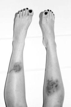 leg bruises tumblr - photo #24