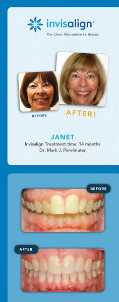 Check out Janet's smile after 14 months of Invisalign treatment!