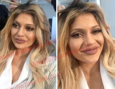 MTO SHOCKER: Kylie Jenner Has Officially DESTROYED HER FACE . . . Check Out How She Looks . . . After Her Latest PLASTIC SURGERY!!!