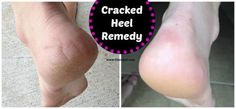 Cracked Heel Remedy for soft feet  |  This is super easy and does not require a bunch of potions.
