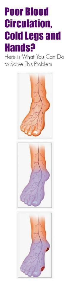 Poor Blood Circulation, Cold Legs and Hands? Here is What You Can do to Solve This Problem