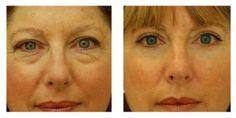 Endoscopic Brow Lift, Eyelid Surgery, Eye Lift for Women in New York City Sunken Eyes, Eyelid Surgery, Eye Lift, Lip Fillers, Upper Lip, Plastic Surgery, Beauty Hacks, Beauty Tips, Hair And Nails