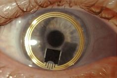 Sensimed IOP sensor: Sensimed uses telemetric contact lens to track intra-ocular pressure in glaucoma patients. Sensimed is based in Lausanne, Switzerland and has been marketing its device in Europe since it was approved by regulators there in 2009. It is still pending FDA approval.