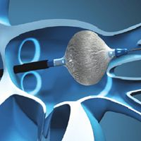 CryoBalloon Ablation: of Patients Required RF to Achieve Isolation; For best results, you want an EP who is not only experienced with CryoBalloon, but also, when needed, can use RF to map and isolate non-PV triggers. Radiofrequency Ablation, Atrial Fibrillation, Blog Page, News Blog, Clinic, Study, Map, Studio, Location Map