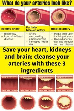 Save your heart, kidneys and brain: cleanse your arteries with these 3 ingredients.