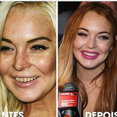 Before and after dentist beautiful work - Lindsay Lohan #beforeandafter #beforedentist #afterdentist #smilemakeover #dentistry #dentures #dentistrylife #dentist #dentista #dent #smile #dente #veneers #lindsaylohan #celebrity by doctor.ml Our Dentures Page: http://www.myimagedental.com/services/general-dentistry/dentures/ Other General Dentistry services we offer: http://www.myimagedental.com/services/general-dentistry/ Google My Business: https://plus.google.com/ImageDentalStockton/about Our…