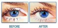 before & after collyre bleu eye drops  http://www.collyrebleueyedrops.com/