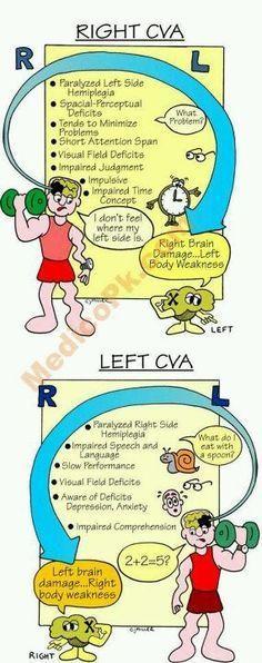 Right and Left CVA More