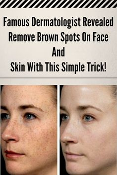 Famous Dermatologist Revealed: Remove Brown Spots On Face And Skin With This Simple Trick! http://wp.me/p8Hrfc-2Q