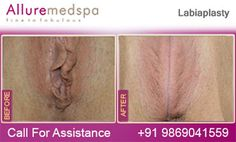Fly to India for Labial Reduction Surgery (also known as Labiaplasty, Labia Surgery, Labia Reduction) at Less Price/Cost Compare to Gaborone, Francistown, , Botswana at Leading Cosmetic Surgery Center in Mumbai, India- Alluremedspa, It is 1 or 2 Hour Surgical Procedure Designed to Sculpt the External Vaginal Structures by Reducing and/or Reshaping long or uneven labia by Best Labial Reduction Surgeon/Doctor Dr. Milan Doshi.