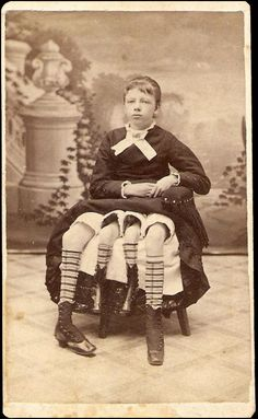 Josephine Myrtle Corbin  Born in Lincoln County, TN in 1868 and spending most of her childhood in Blount County, AL - daughter to a wounded Confederate Soldier ( found in the 1880 census ) - her condition was incredibly rare. The tiny body of her twin was only fully developed from the waist down and even then it was malformed – tiny and possessing only three toes on each foot.