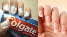 I Never Imagined That Toothpaste Could Do So Many Things. Check These 15 Amazing Tricks! 15 Brilliant Uses for Toothpaste You've Never Considered! Toothpaste can be used for so much more than just polishing your pearly whites. It actually possesses unique Grow Nails Faster, How To Grow Nails, How To Apply, Uses For Toothpaste, Colgate Toothpaste, Dental, Nail Fungus, Strong Hair, Rubbing Alcohol