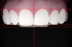Resultado de imagen para diseño de sonrisa