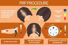 Platelet Rich Plasma Therapy | What Should I Avoid After PRP Experience Platelet Rich Plasma Therapy, Blood Components, Androgenetic Alopecia, Blood Plasma, Randomized Controlled Trial, Red Blood Cells, Stop Hair Loss